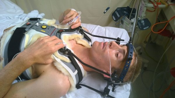 Steve after having a halo brace fitted